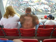 Redneck Ick picture of a redneck with a nascar driver's number shaved into his back hair.